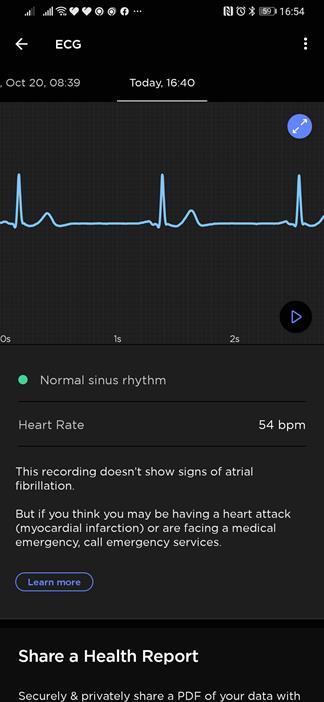 Withings ScanWatch HealthMate screenshot